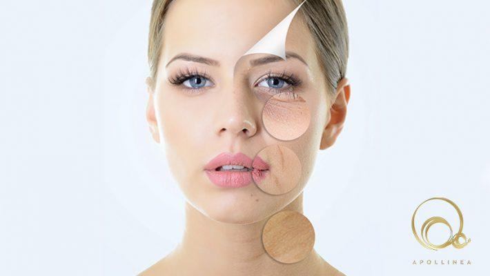 Invecchiamento cutaneo: perché accade e cosa fare